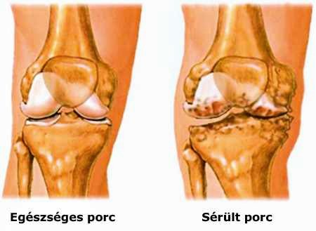 deformáló csípő osteoarthrosis hogyan kezelhető